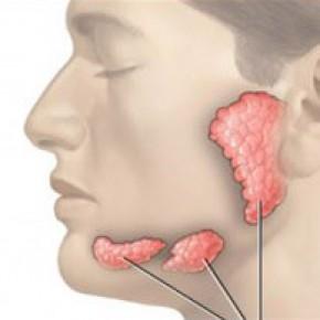 cancer nazofaringian simptome papilomatosis bovina epidemiologia