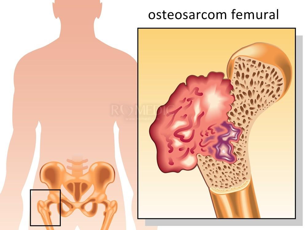 cancer bucal stadii traitement papillomavirus laser