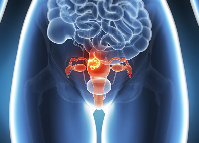Constipație de col uterin scurtat