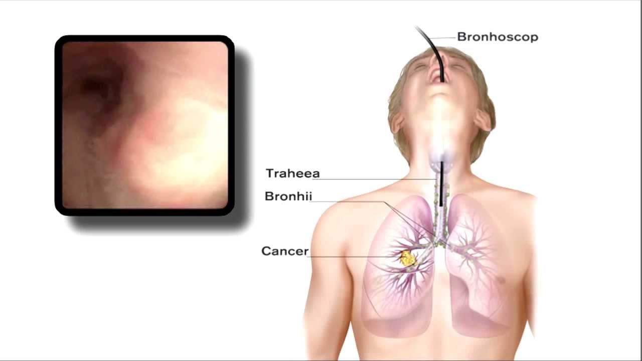 cancer plamani vindecat