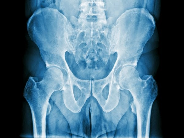 Cat de bine sa eliminati staza de prostata