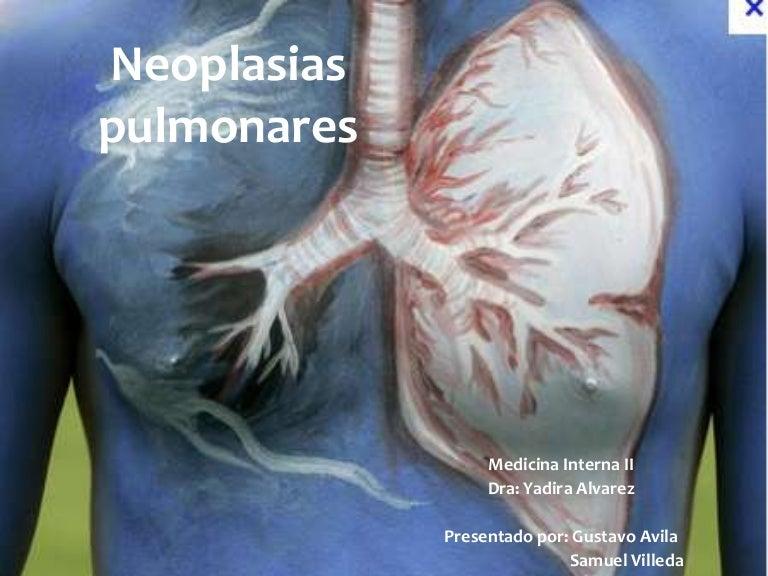 cancer pulmonar malign