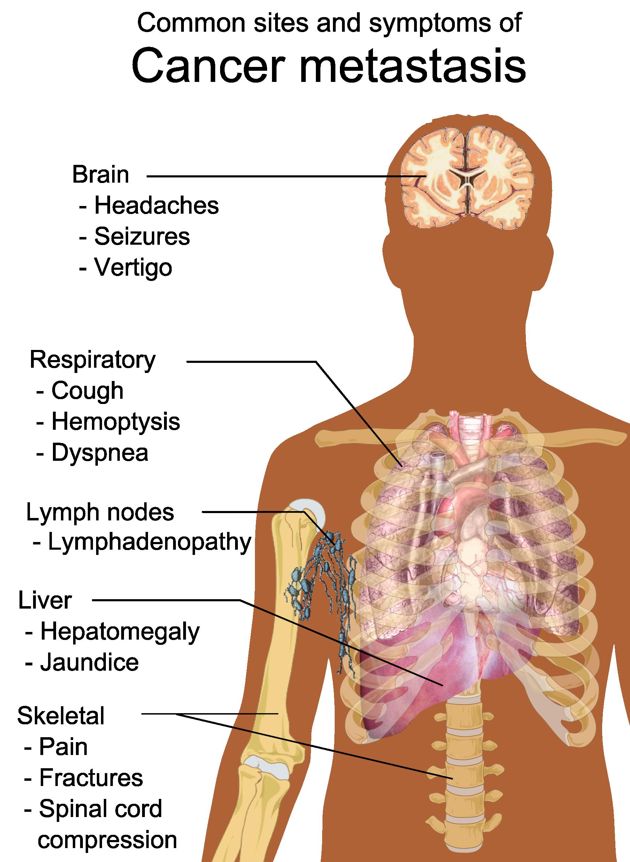 cancer pulmonar metastasico