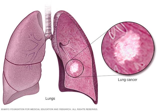 Factori de imunitate cancer de prostată