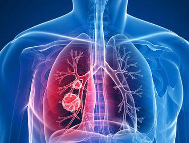 cancer pulmonar ultimele stadiu