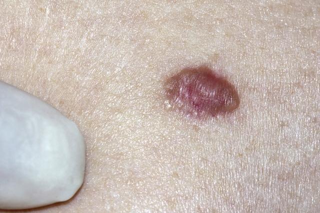 papilloma virus in bocca immagini virus hpv cancer gorge