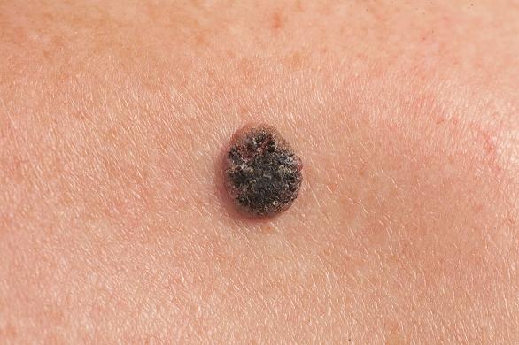 Carcinom cu celule scuamoase - Tot ce trebuie să ştii | Cancer