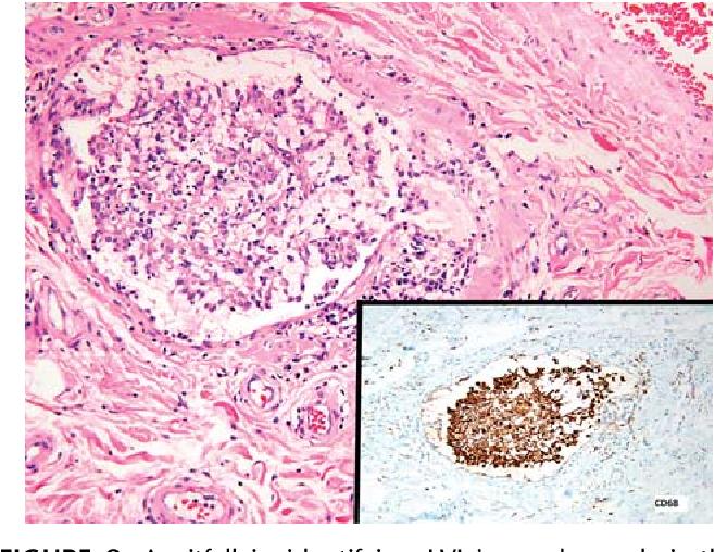 cancer testicular malign cancer uretre