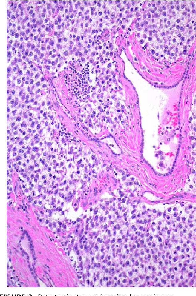 cancer testicular malign