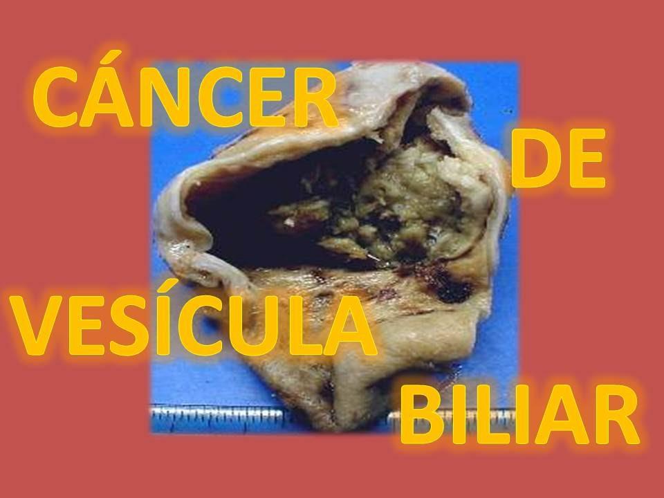 cancer vesicula biliar etapa 4