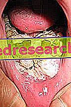 cancerul de gura