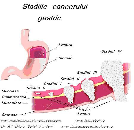 cancerul digestiv simptome