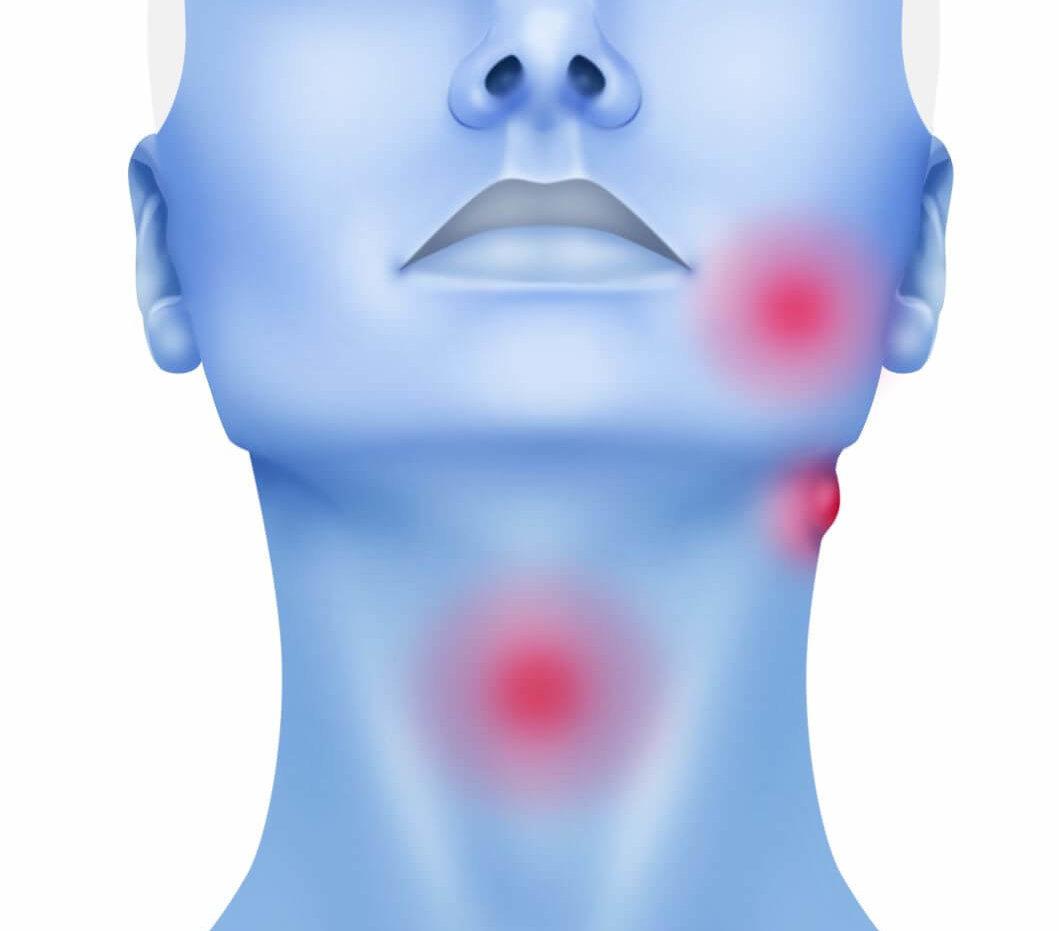 cancerul maxilo-facial