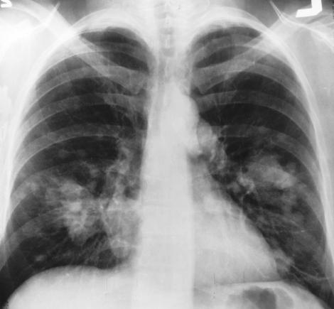 cancerul pulmonar se poate transmite