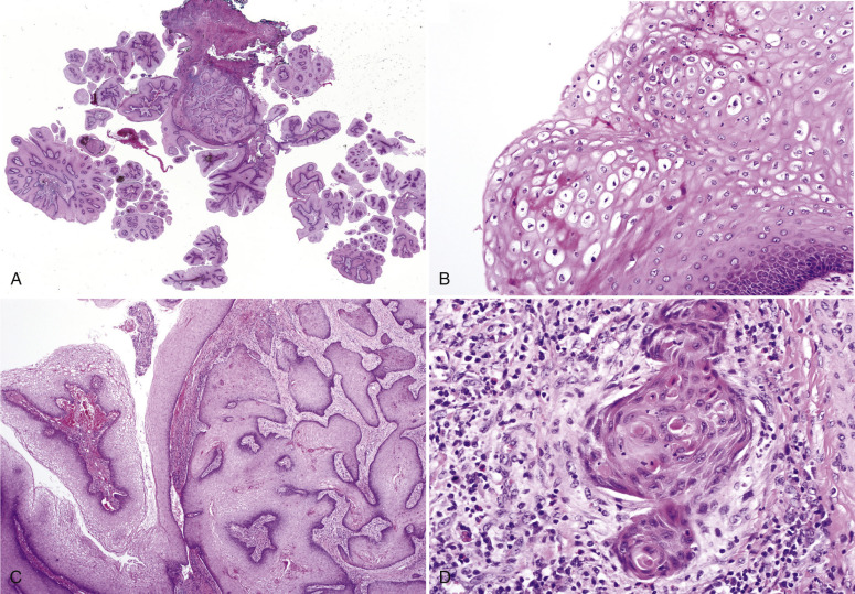 que es el cancer pulmonar sirop nikvorm pareri