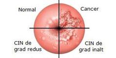 papiloma humano vih cancerul pulmonar este transmisibil