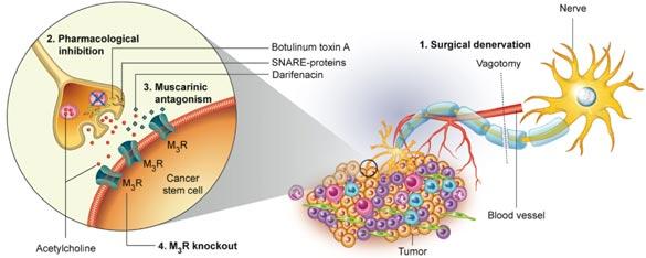 gastric cancer vagotomy hepatocellular cancer test