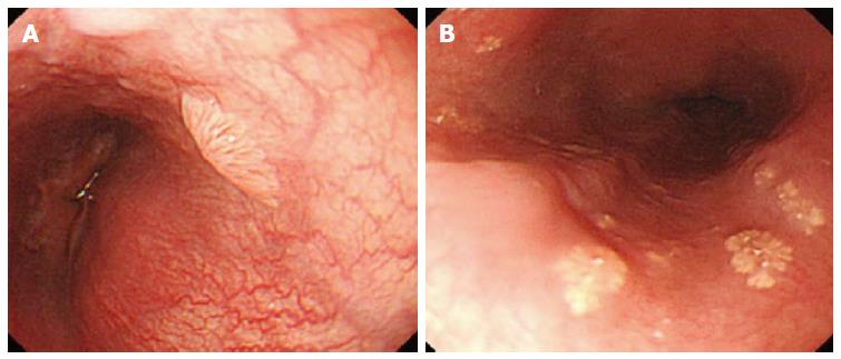 confluent and reticulated papillomatosis before and after