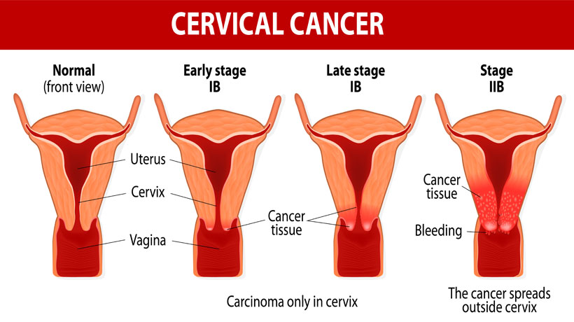 cervical cancer early signs