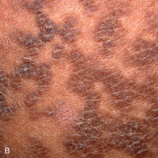 confluent and reticulated papillomatosis itchy