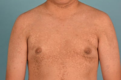confluent and reticulated papillomatosis vs acanthosis nigricans