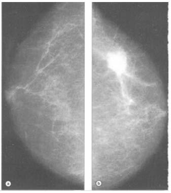 abdominal cancer uk papillomavirus humain 16 et 18