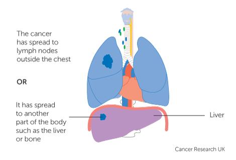 Chimioterapia citotoxică – principii şi indicaţii în cancer