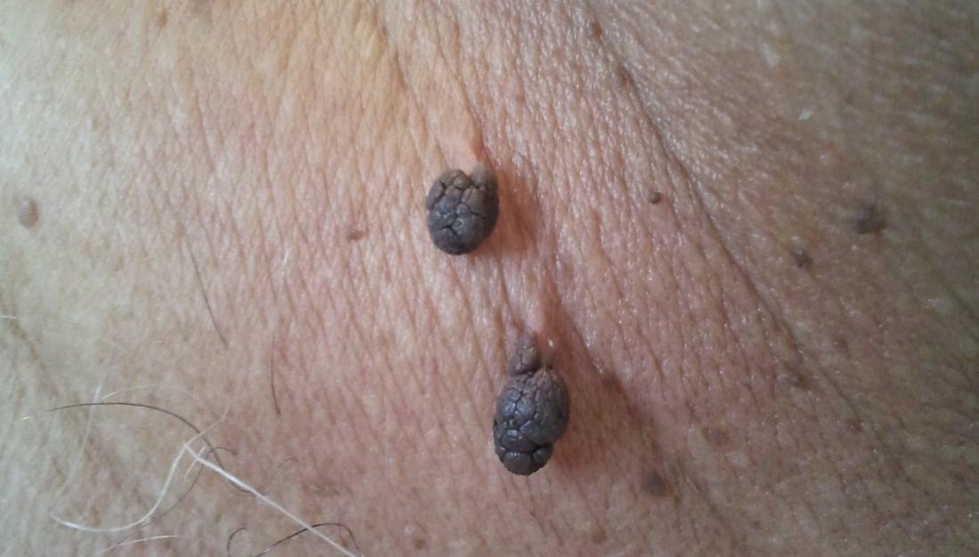 papilloma virus e fibroma laryngeal papillomatosis triad