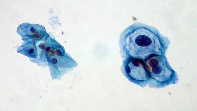 virus papiloma humano serologia