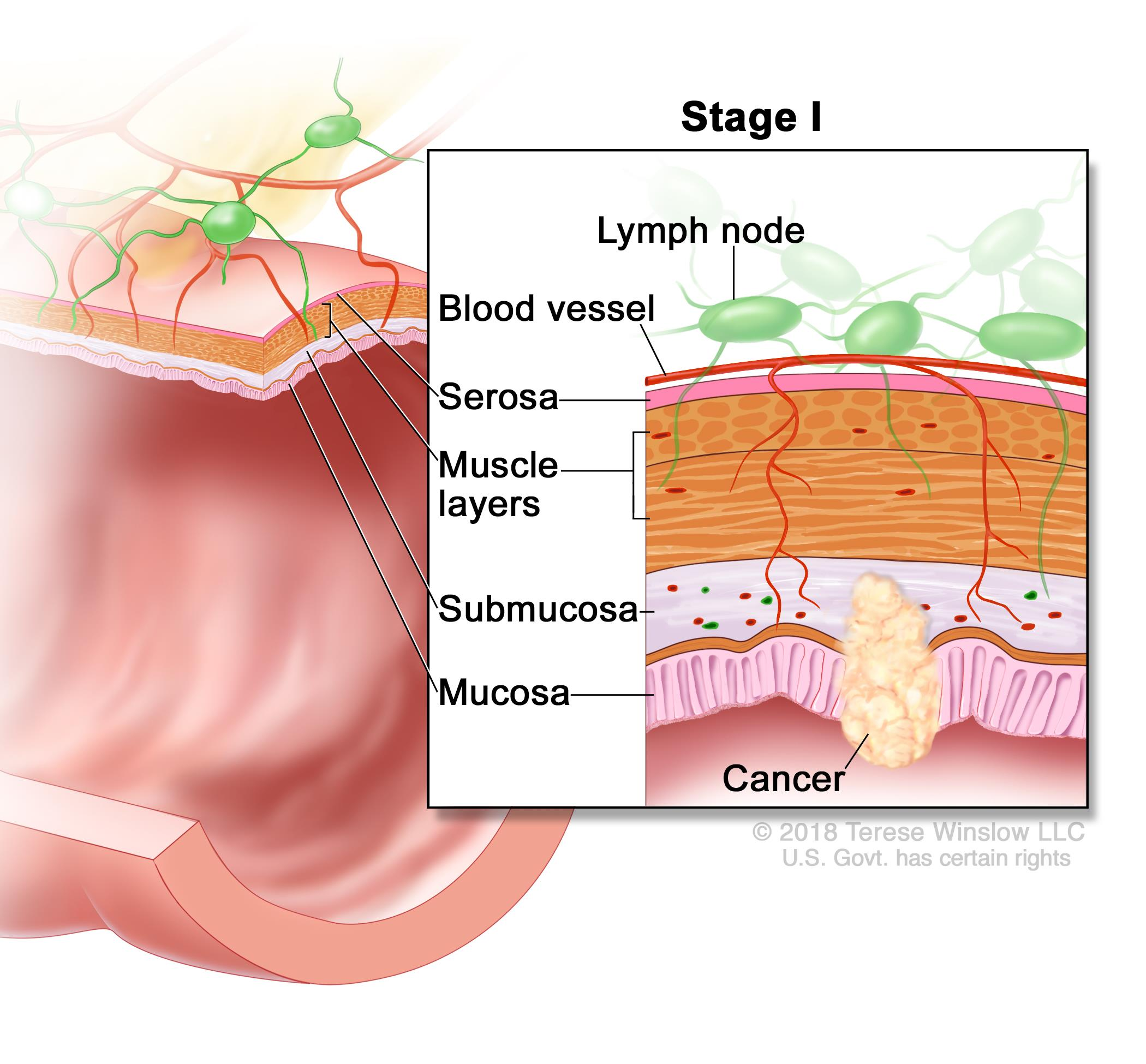 rectal cancer how fast does it grow hpv virus shows in pap smear