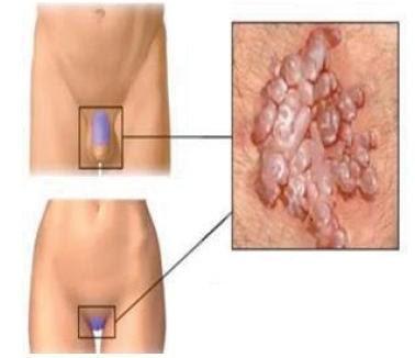 cancer pancreatic ultima faza condyloma acuminata hiv