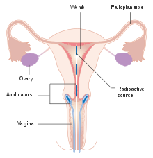papilloma colli meaning
