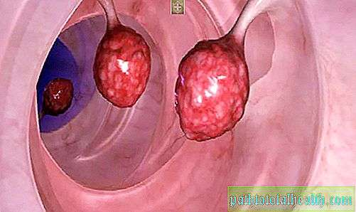 hpv related squamous cell carcinoma icd 10