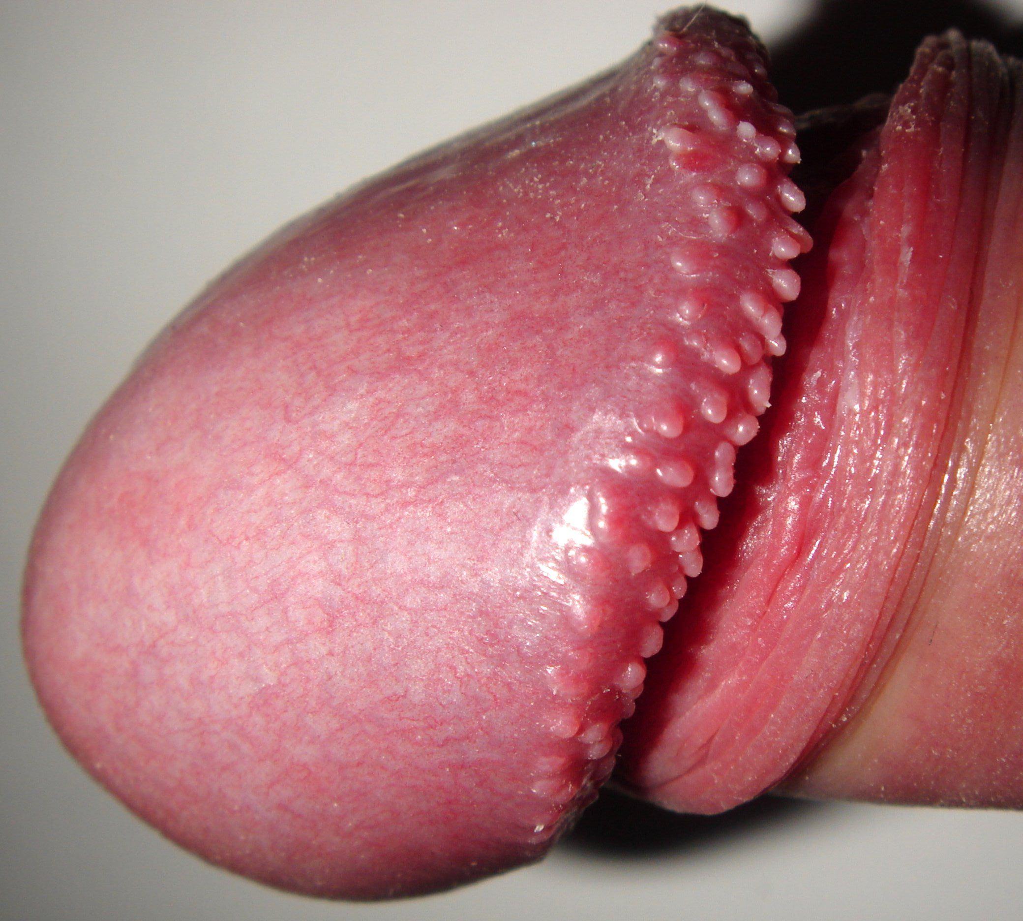intervento papilloma alla gola cancer via biliar intra hepatica