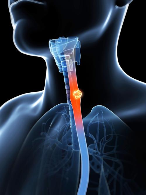 hpv throat phlegm