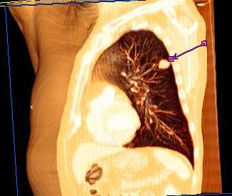 Cancerul esofagian – generalitati si stadializare