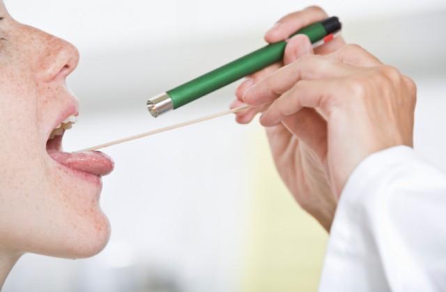 cancer orofaringe tratamento parazitii traume