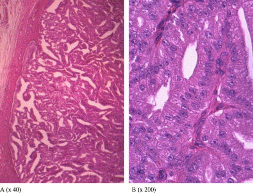 Adenom parotid vs carcinom
