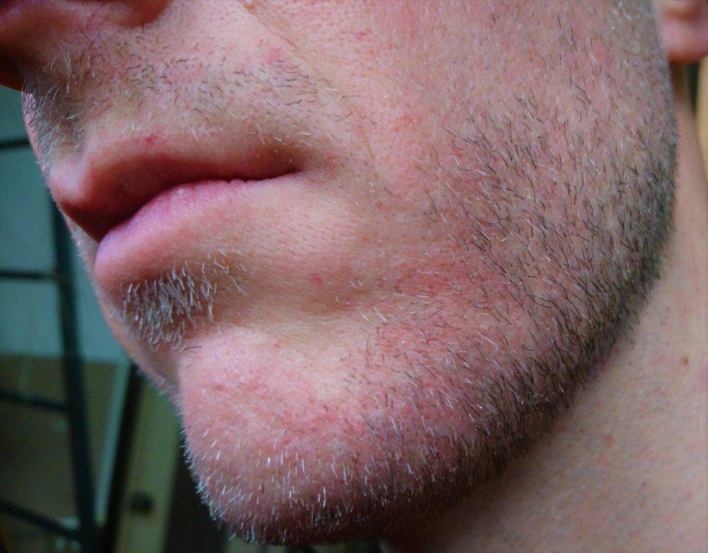 Dermatita seboreică a scalpului se vindecă dacă iei ulei de pește
