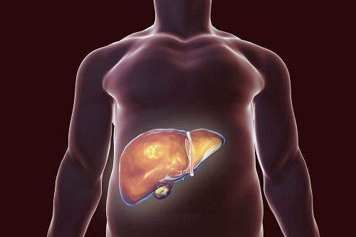 cancer metastaza simptome paraziti v tele lecba