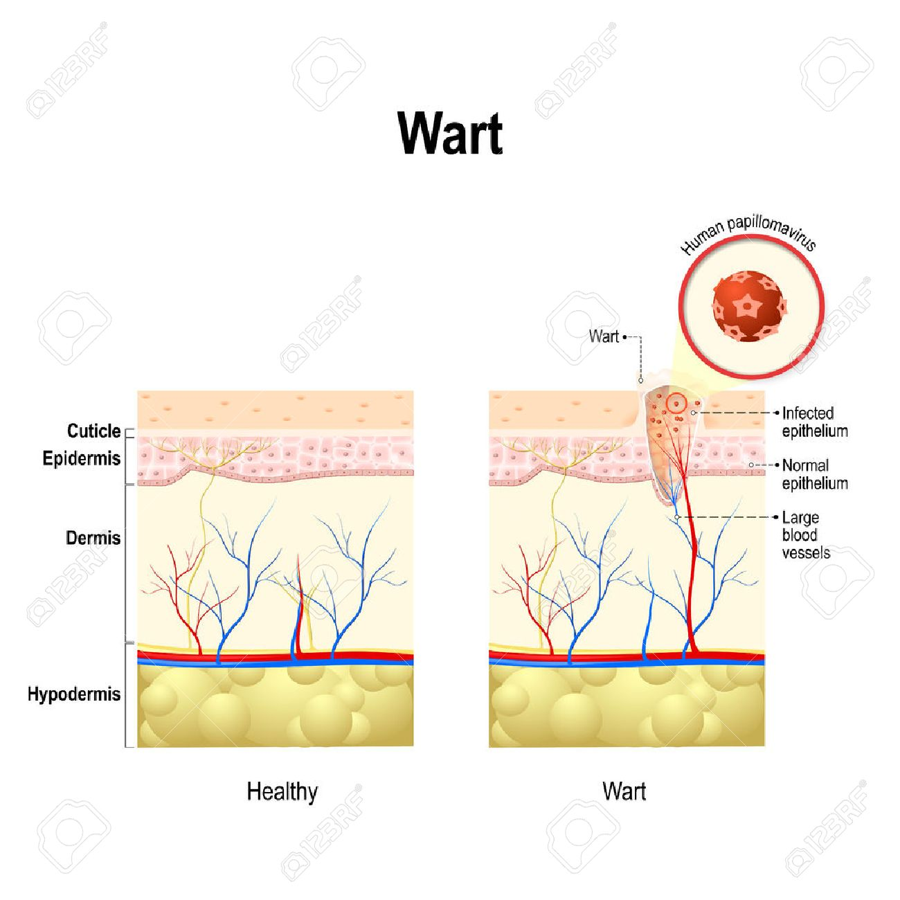 does wart hpv cause cancer