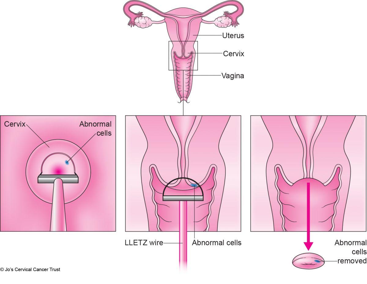 hpv treatment leep electrosurgical excision procedure cancer de colon rectal