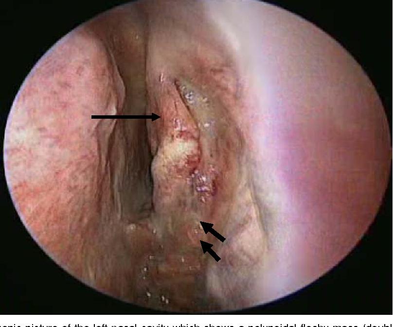 papilloma be removed papillomavirus homme verrue