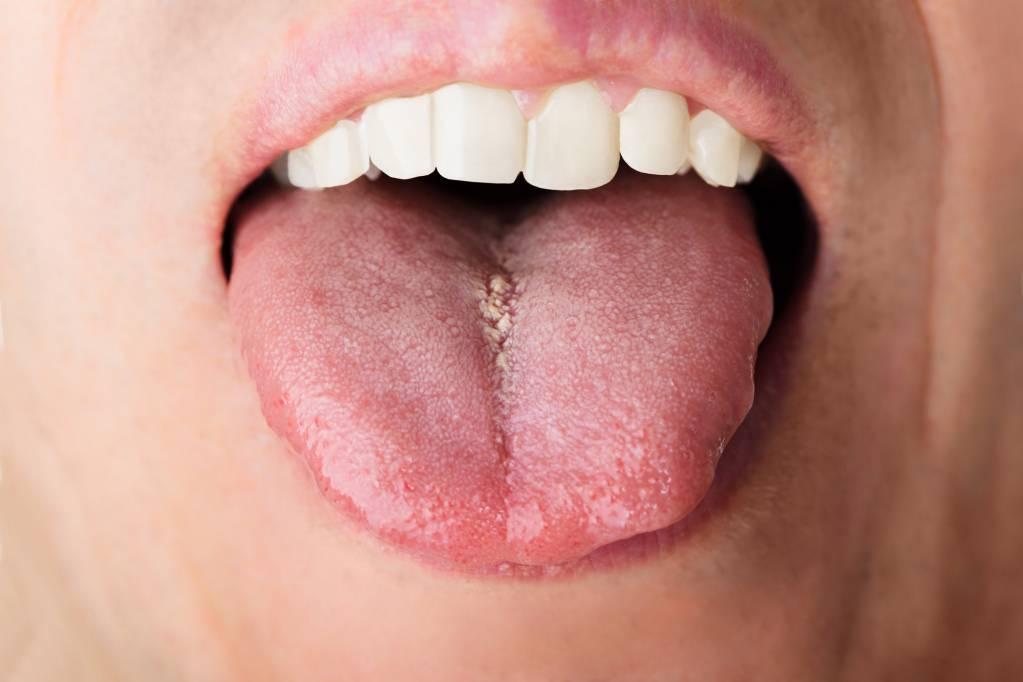 hpv warzen mund papilloma virus alto e basso rischio