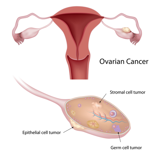 ovarian cancer epithelial virus del papiloma humano williams