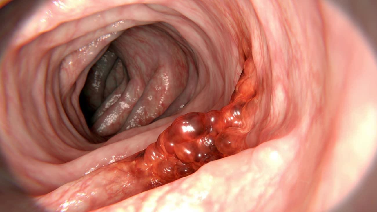 hpv throat polyps