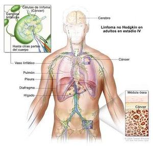 cancer hodgkin tem cura