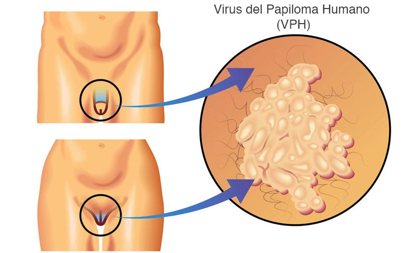 papillomavirus faire un bebe if papilloma appear on the neck or back it means your body