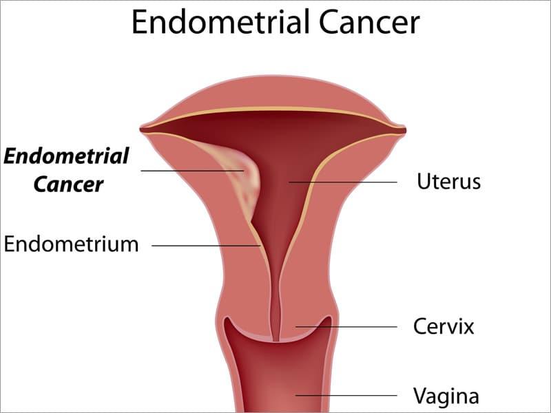 endometrial cancer definition vaccin contre papillomavirus homme