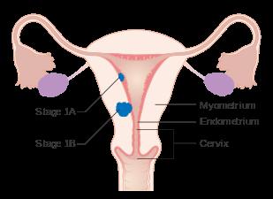 incidence hpv oropharyngeal cancer paraziti v tele lecba
